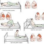 article-Chest-Physiotherapy-4Dt